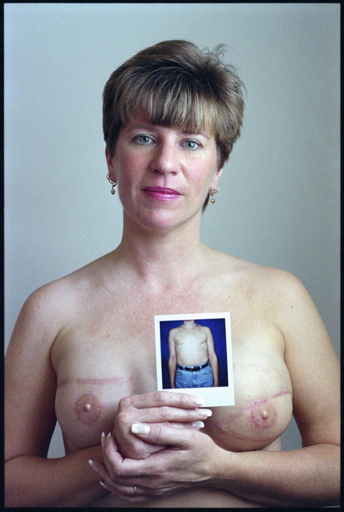 Sue Reedy, Breast Cancer Survivor